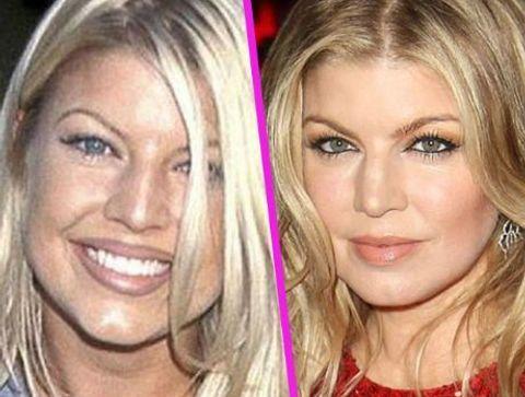 Fergie - Stars : les pires ratés de la chirurgie esthétique !