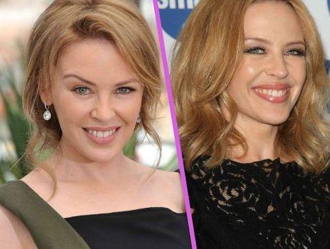Kylie Minogue - Stars : les pires ratés de la chirurgie esthétique !