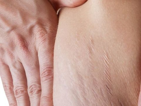 Peau (vergetures) après la grossesse - Retrouver son corps après la grossesse
