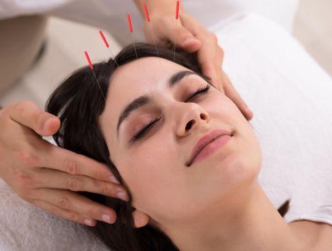 L'acupuncture ou comment rééquilibrer les énergies