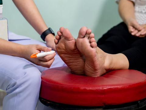 Complications neurologiques du diabète : la neuropathie diabétique