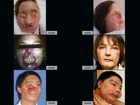 Greffe de visage : retour sur les transplantations faciales les plus spectaculaires