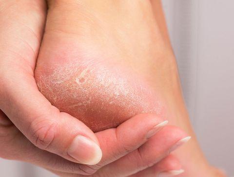 produit pour enlever la corne des pieds