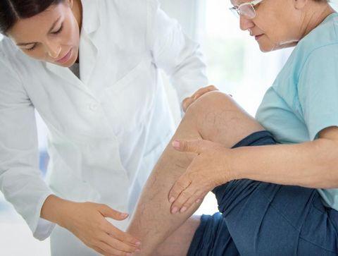 Jambes lourdes : le diagnostic de l'insuffisance veineuse