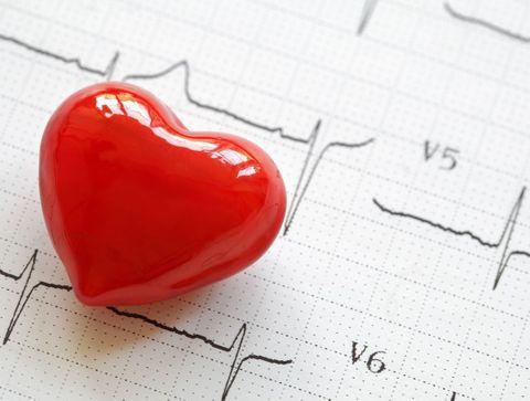 infarto: os fatores de risco não reconhecidos