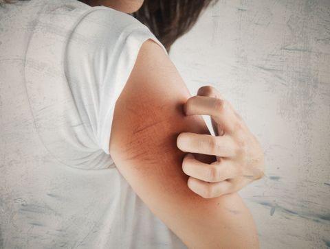 Démangeaisons : 10 solutions naturelles pour les soulager