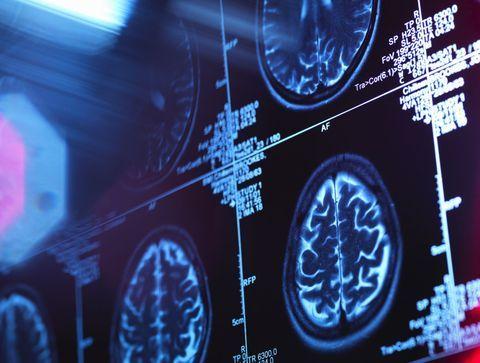 Maladie d'Alzheimer : les Etats-Unis autorisent la première immunothérapie qui ralentit le déclin cognitif