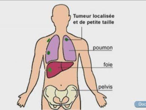 L'intérêt des biomarqueurs face au cancer du poumon