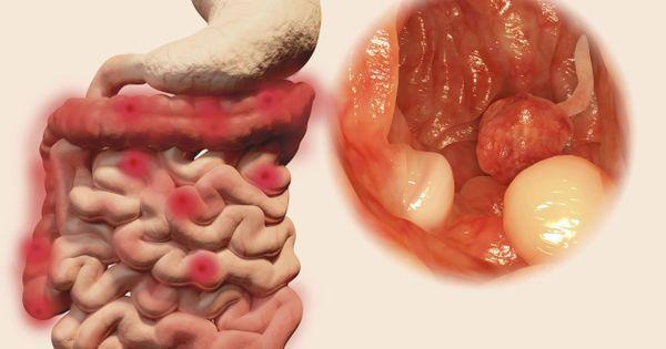 cancer colorectal stade 4 survie)