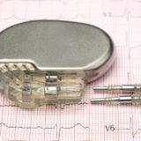 Les stimulateurs cardiaques en 10 questions