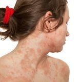 Dermatite atopique de l'adulte