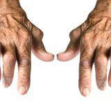 L'essentiel sur la polyarthrite rhumatoïde