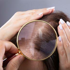 La pelade ou alopécie en plaques