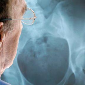 Une aide contre l'ostéoporose